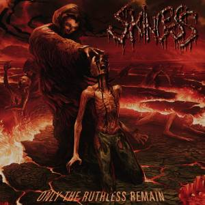 Cover - Skinless: Only The Ruthless Remain
