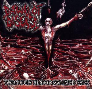 Cover - Dawn Of Disease: Through Bloodstained Eyes